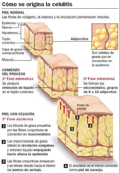 El proceso de la celulitis